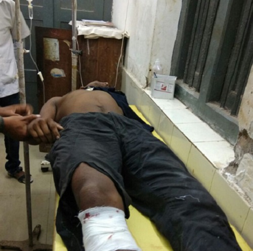 Criminal-injured-in-police-encounter