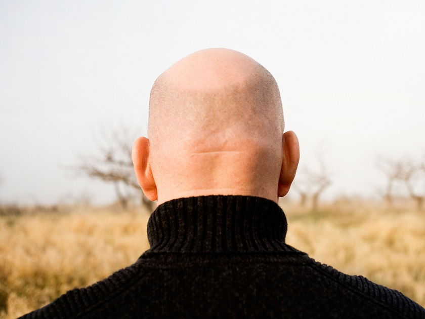 bald-head-alamy 123