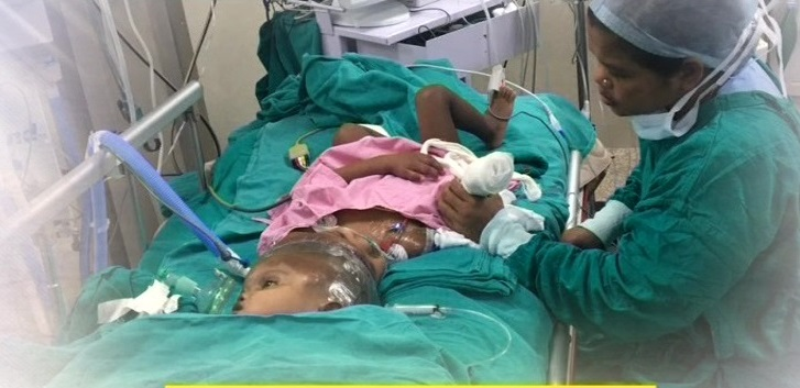 Conjoined-twins-jaga-balia-after-separation