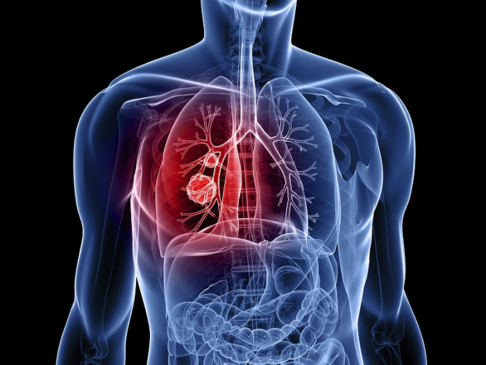 lung-cancer (1)